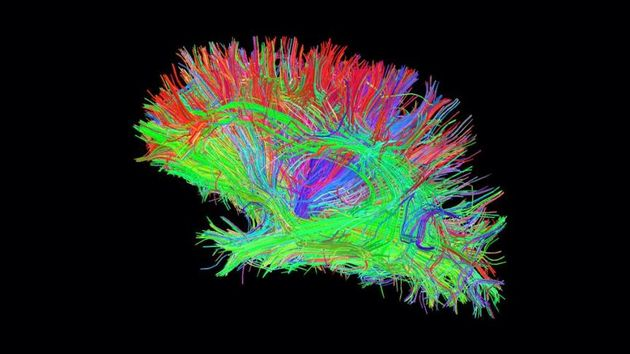 The first ever 3D digital hologram of the human brain fibre connections. / Euronews,