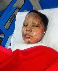 Asma Yaqoob succumbed to her injuries on Sunday night (April 22) after attack last week. / Morning Star News