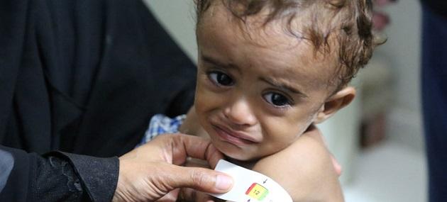 A child is treated of malnutrition in Hajjah, Yemen. / ONU, PMA, Abeer Etefa,