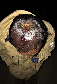 Wounded head of Christian worshipper in Paw Lwe village, central Burma on Dec. 17, 2018.  /Morning Star News